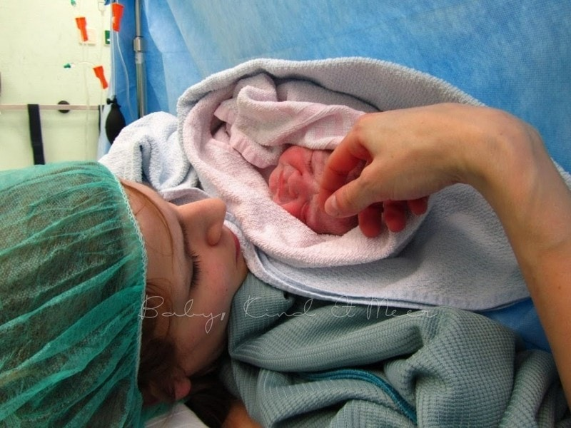 Kaiserschnitt Geburt 4
